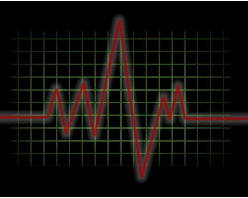 pulse machine